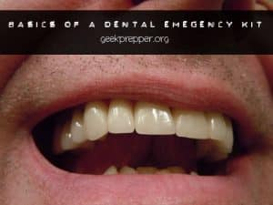 basics of a dental emergency kit